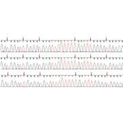 Анализ метилирования промоторов генов-супрессоров фото