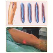 Амбулаторное выполнение операций при варикозной болезни фото