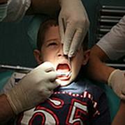 Удаление молочного зуба у ребенка. фото