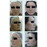 Химические пилинг лица фото