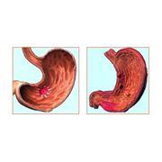 Диагностика и лечение язвы желудка фото