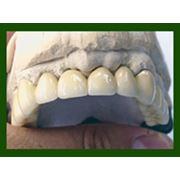 Коронки мосты протезы металлокерамика керамика нейлоновые протезы съемные протезы вставная челюсть фото