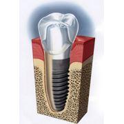 Имплантанты зубные фото