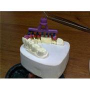 Зуботехническое литье фото