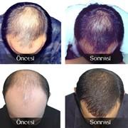 Средства для восстановления волос фото