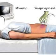 Ультразвуковое исследование Ультразвуковое исследование - неинвазивное исследование организма человека с помощью ультразвуковых волн фото