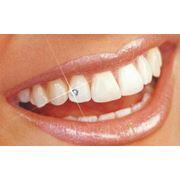 Бриллианты для зубов фото