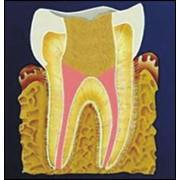 Рентгеновизиография фото