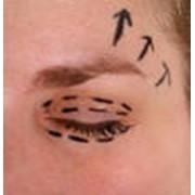 Блефаропластика - операция по изменению формы век, разреза глаз фото