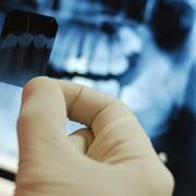 Компьютерная рентген диагностика фото