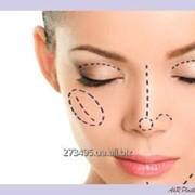 Изменение формы носа (Ринопластика) фото