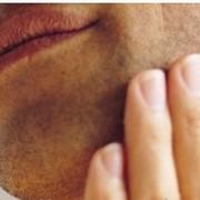 Лазерная эпиляция: зона верхней губы у мужчин фото