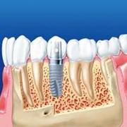 Имплантация зубов на Осокорках фото