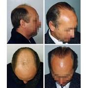 Пересадка (трансплантация) волос фото