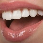 Художественная реставрация зубов фото