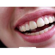 Изготовление и установка зубных коронок фото