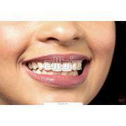 Профессиональное отбеливание зубов фото