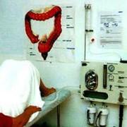 Орошение кишечника фото