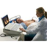 Ультразвуковая диагностика фото