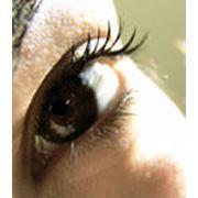 Глазная хирургия фото