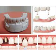 Протезирование зубов фото