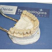 Металлокерамические зубные протезы фото