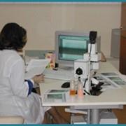 Капилляроскопия фото