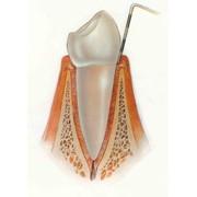 Лоскутная операция + лечение (зона 6-7 зубов) фото