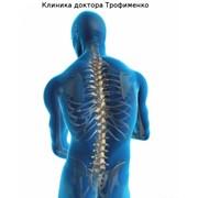 Лечение опорно-двигательного аппарата в клинике доктора Трофименко в Украине, Цена фото
