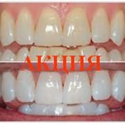 Отбеливание зубов и профессиональная гигиена полость рта фото