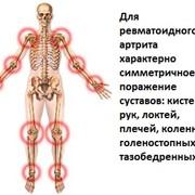 Лечение артрита фото