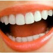 Изготовление зубных протезов фото