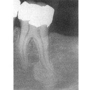 Диагностика длины зуба электронная фото