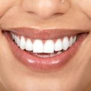 Лечение аномалий зубо-челюстной системы фото
