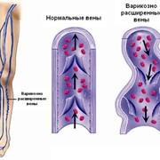 Варикозная болезнь нижних конечностей фото