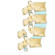 Спондилолиз перелом/дефект дуги позвонка фото