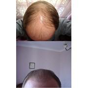 Восстановление волос. Пересадка волос методом FUE фото