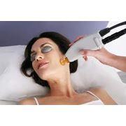 Лазерное лечение UltraPulse фото