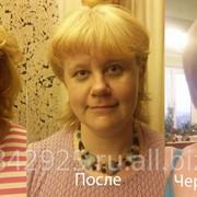 Эстетическая коррекция лица фото