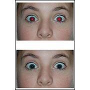 Коррекция красных глаз фото
