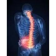Магнитно-резонансная томография отдела позвоночника (шейный, грудной и поясничный отделы) фото