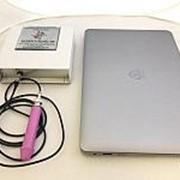 Сканер ультразвуковой для носовых пазух (эхосинускоп) Исполнение 4.3 с нетбуком (переносной) фото