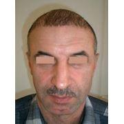 Пересадка собственных волос фото