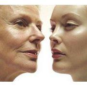 Изменение контуров лица фото