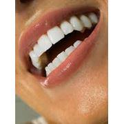 4D - зубная имплантология фото