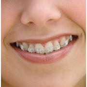 Ортодонтия (исправление прикуса) фото