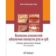 Атлас и руководство Болезни слизистой оболочки полости рта и губ. Клиника диагностика и лечение фото