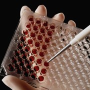 Диагностика гепатитов и других инфекций методами ИФА и ПЦР фото