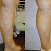 Лечение острых и хронических заболеваний вен фото