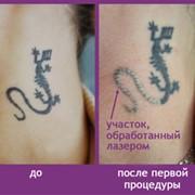 Удаление татуировок лазером, без шрамов! фото
